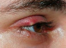 4 domača zdravila za ječmen na očesu! Ne rabite več zdravnika!