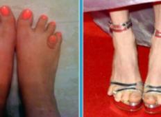 Top 18 najhujših stopal na tem svetu! Kakšna grozota!